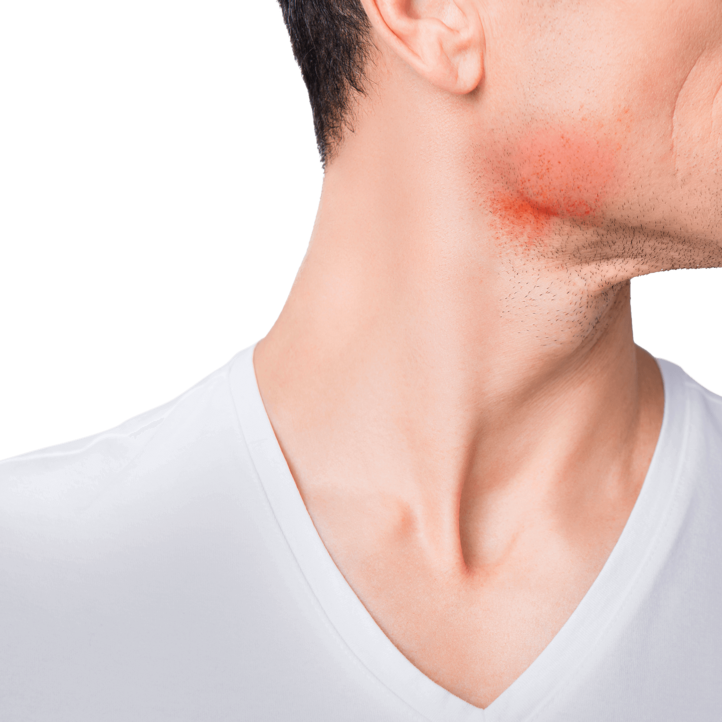 What causes shaving rash and how you can prevent it